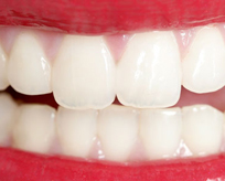 Fillings and Restorations